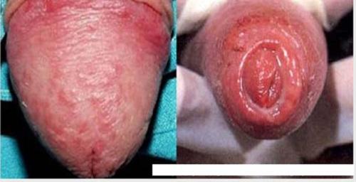 nổi mần đỏ ở bao quy đầu là bệnh gì