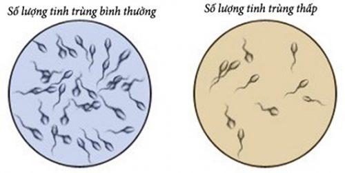 Tinh trùng như thế nào là ít?