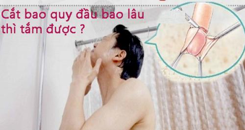 Cắt bao quy đầu bao lâu thì được tắm