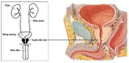 Tìm hiểu về bệnh viêm tuyến tiền liệt ở nam giới