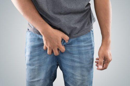 Hiện tượng ngứa bao quy đầu và cách chữa