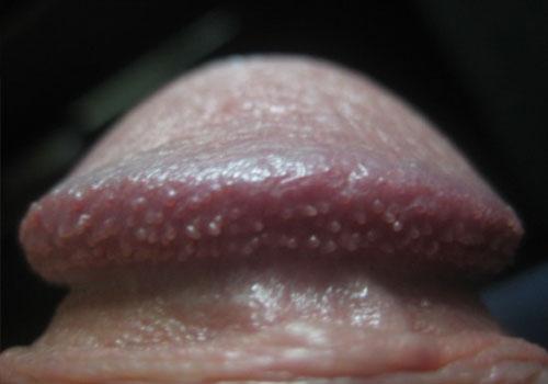 Chuỗi hạt ngọc dương vật có nguy hiểm không?