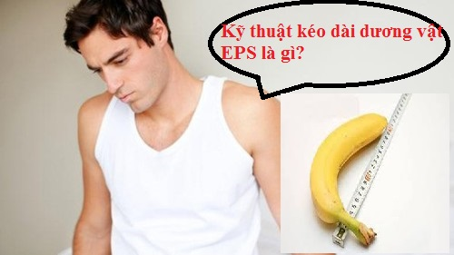 Kỹ thuật kéo dài dương vật EPS là gì?