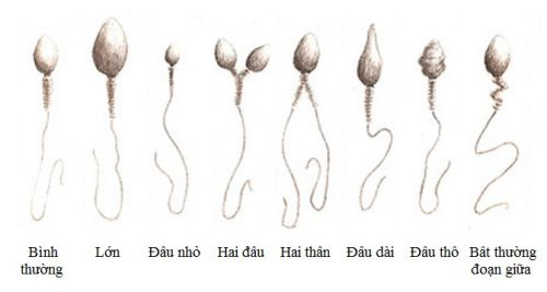 Thế nào là tinh trùng bất thường? Tinh trùng đầu nhỏ ít aacrosome có sao không?