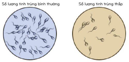 Tinh trùng ít, yếu có nguy hiểm không?