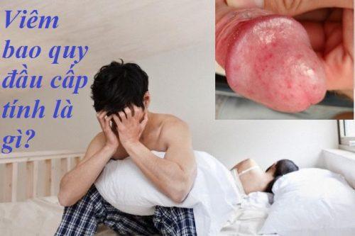 Viêm bao quy đầu cấp tính là gì? Nguyên nhân, triệu chứng và cách điều trị viêm bao quy đầu cấp tính