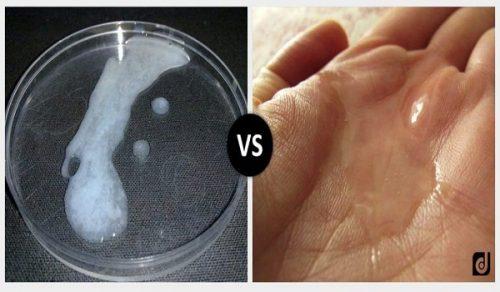 Nhận biết vô sinh thông qua những bất thường ở tinh trùng